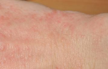 Как проявляется аллергия на моющие средства у взрослых и детей?