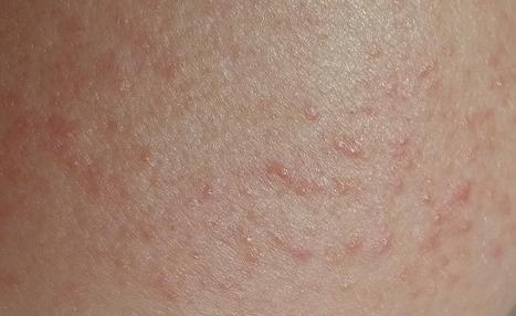 Аллергия на рыбу фото