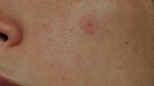 Красные пятна на лице после алкоголя: фото, симптомы, лечение